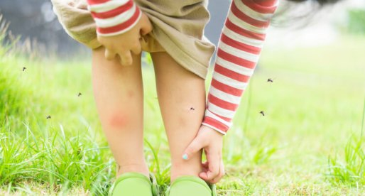 How to Get Rid of Bugs and Mosquitoes This Summer